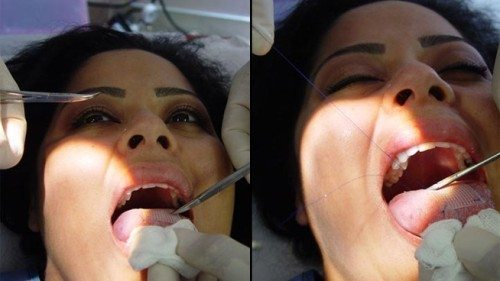 One Surgery We Hope You Never Get The Tongue Patch Fit