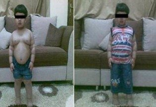 children and gastric bypass