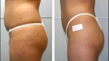 skin brushing and cellulite
