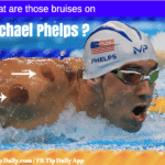 What Are Those Circles on Michael Phelps – Cupping Therapy