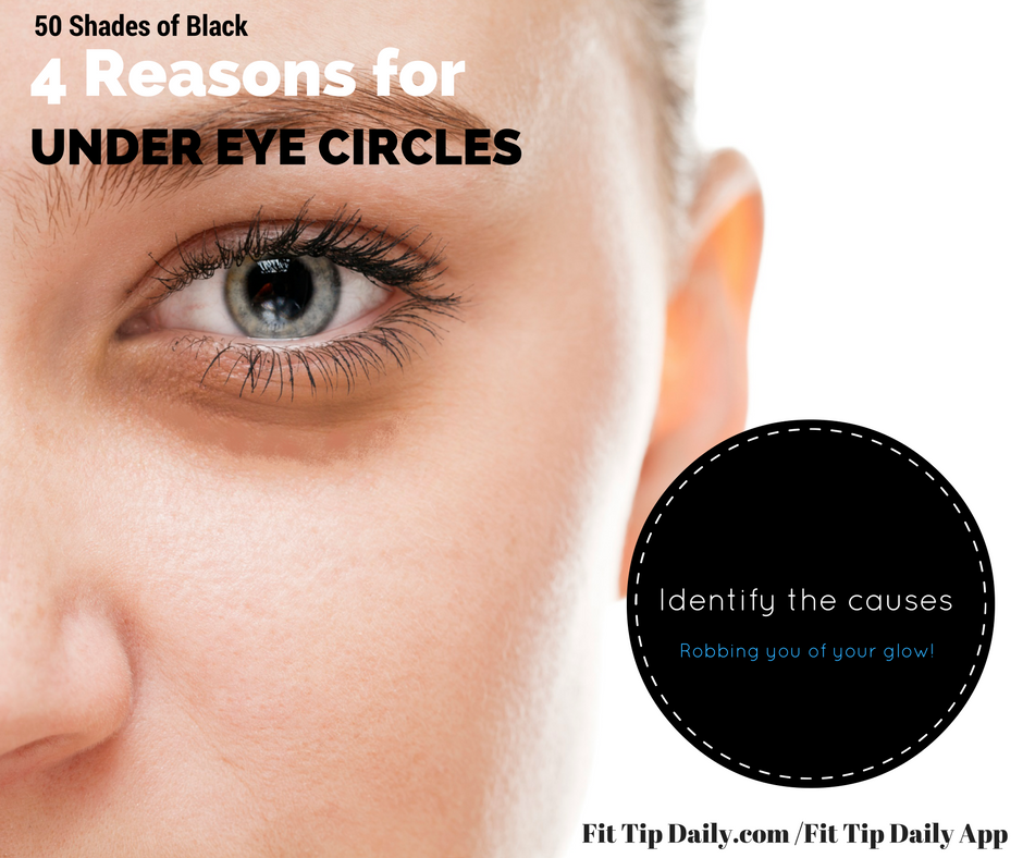 reasons for under eye circles